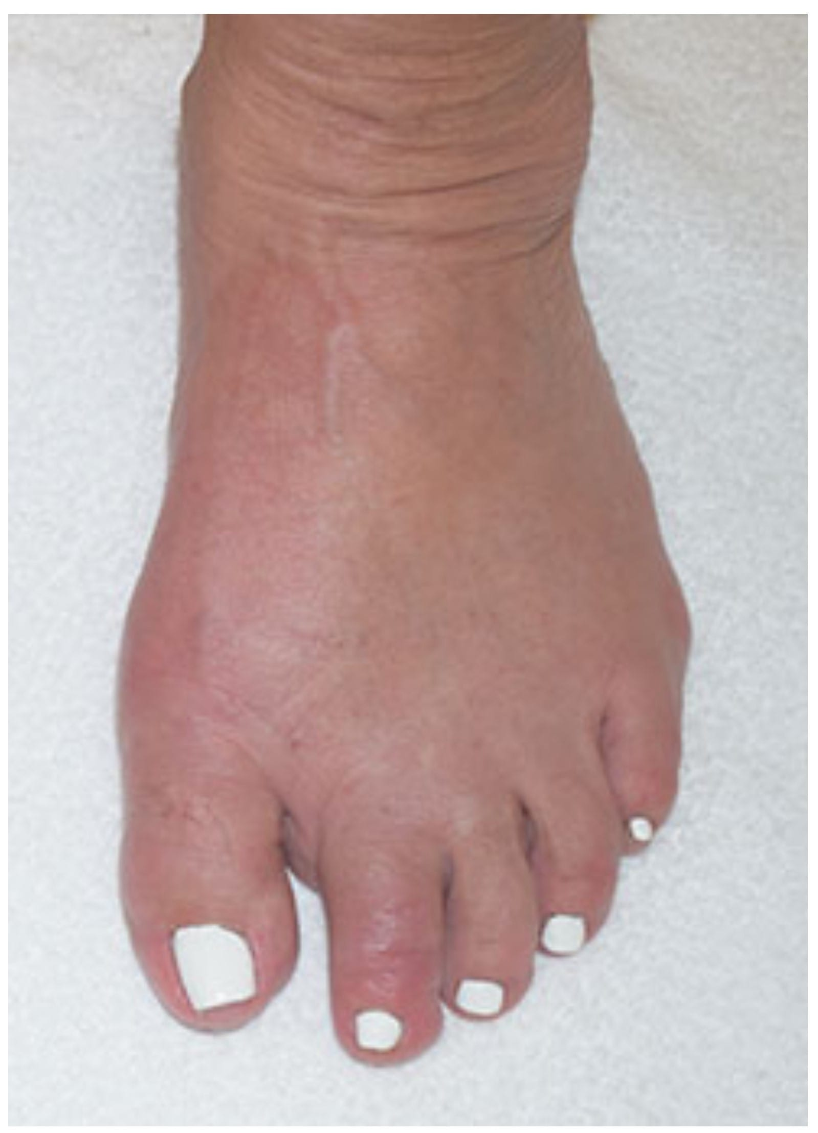 Bunions Treatment After Minimally Invasive Surgery