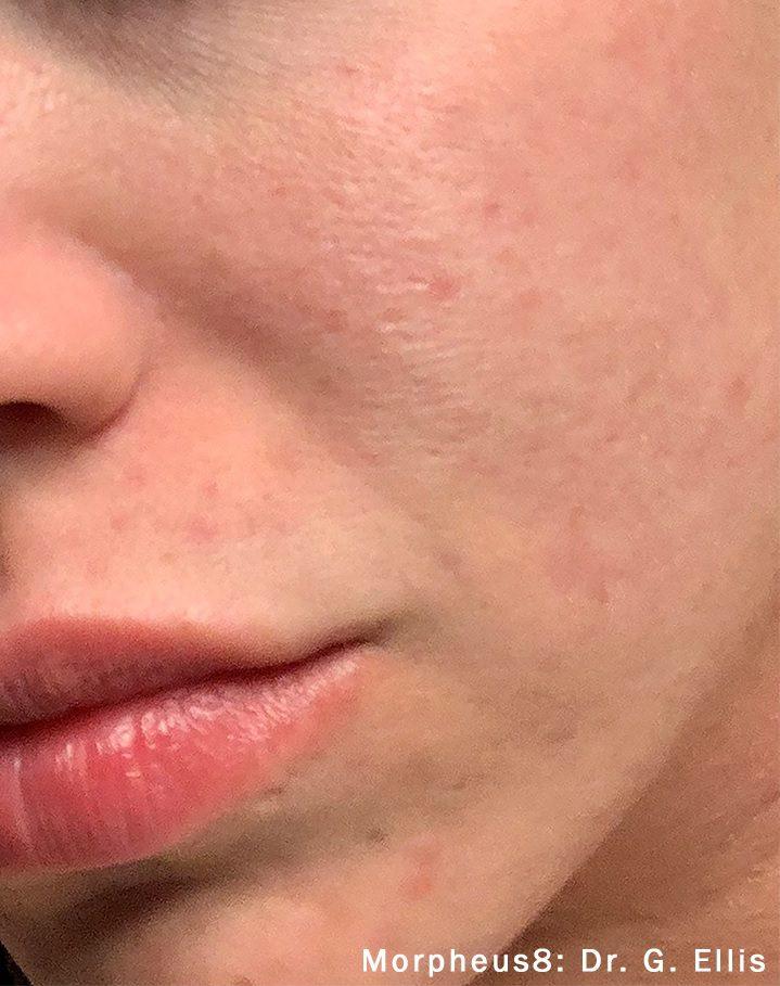 morpheus8 acne female patient after