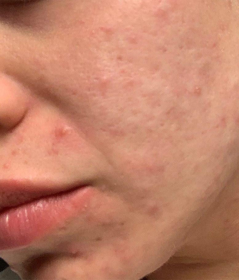 morpheus8 acne female patient before