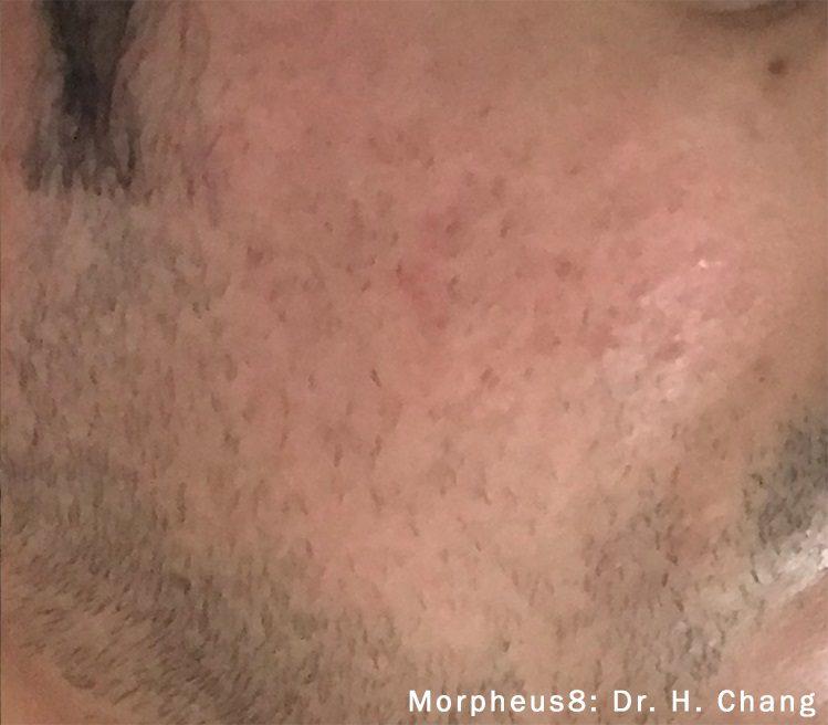 morpheus8 acne male patient after