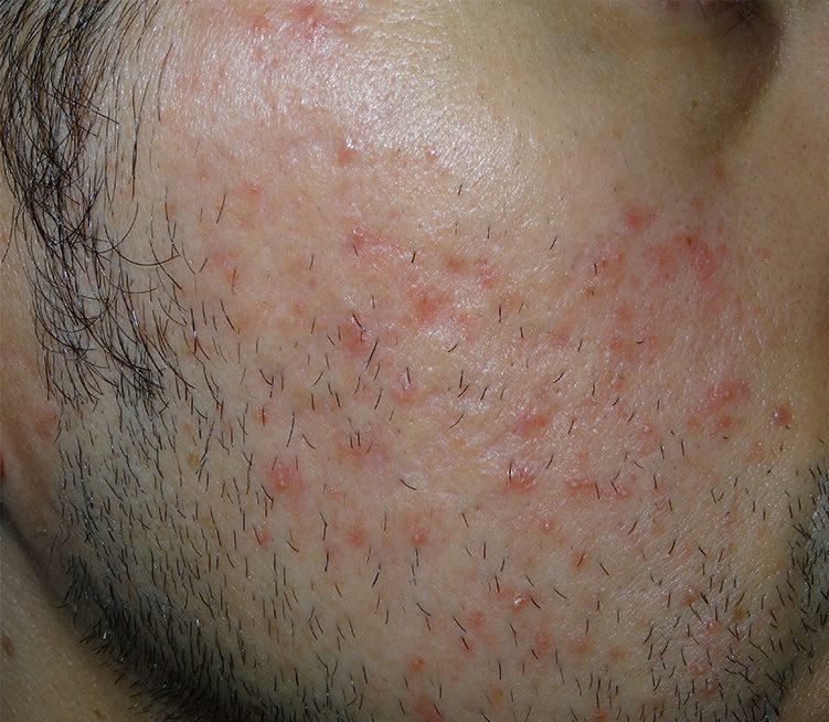 morpheus8 acne male patient before