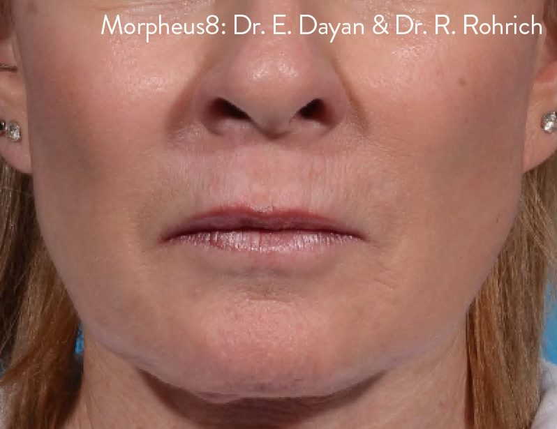 morpheus8 perioral after