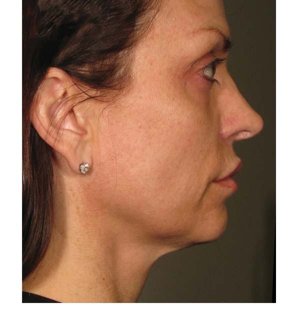 A lady who has had Ultherapy ultrasound to lift and tighten the skin