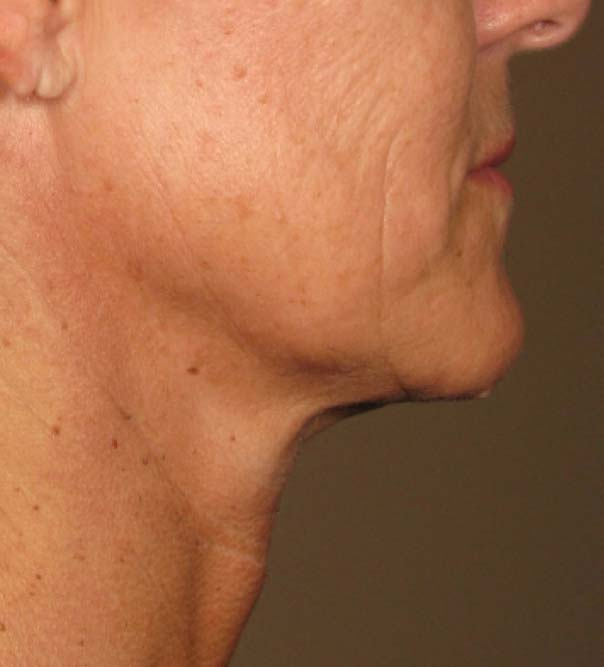 A close up of a lady's chin after having skin lifting and tightening to redefine the jaw line and lift neck