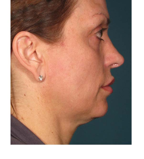 A profile image of a lady before having Ultherapy treatment