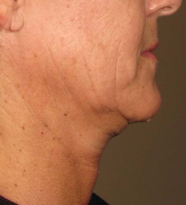 A close up of a lady's chin and neck before having ultrasound skin lifting