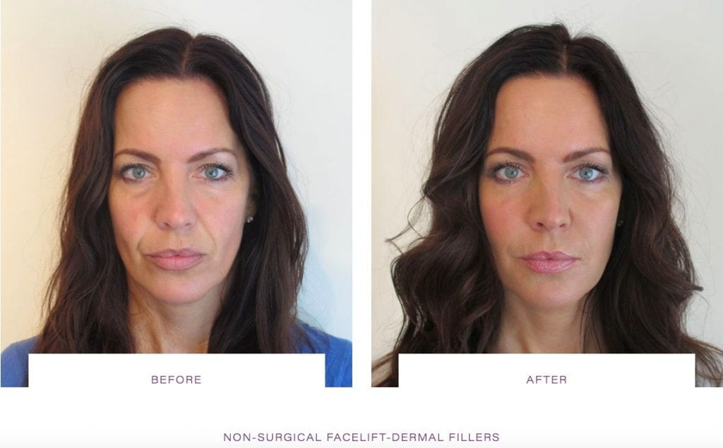 non surgical face lift, dermal fillers, dermal fillers before and after