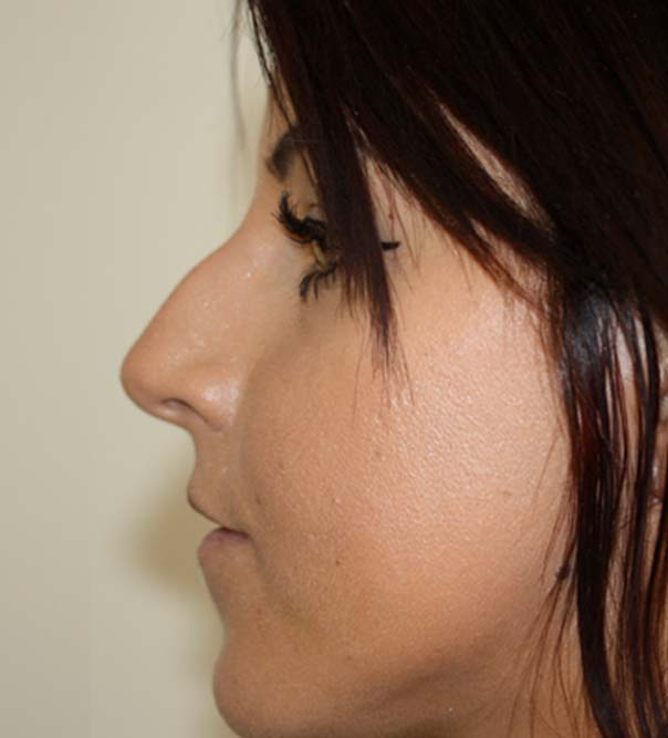 Before image of non-surgical rhinoplasty and non-surgical nose job