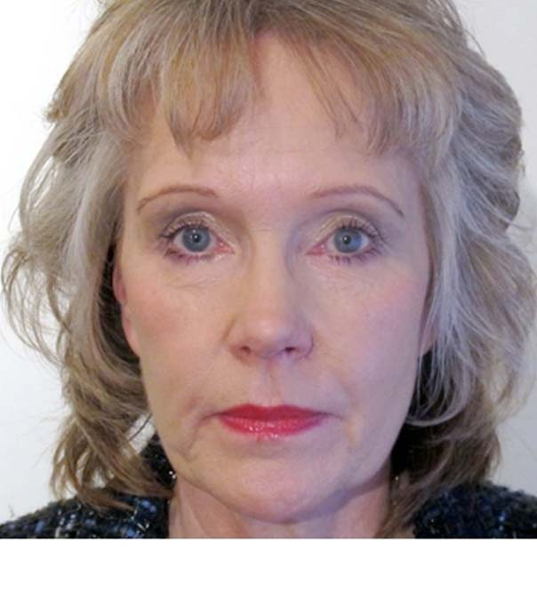 A lady following Pelleve skin tightening treatment