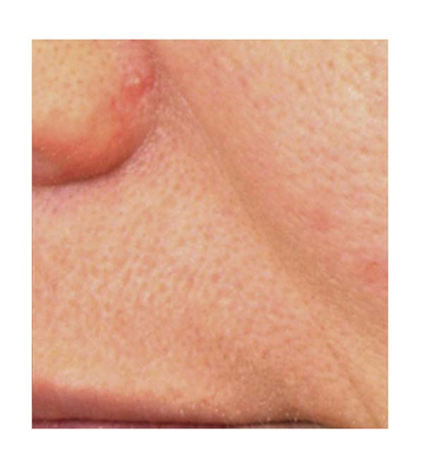 A nose-to-mouth line that has been reduced by using Pelleve