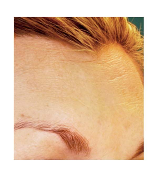 A close up of a forehead following treatment with Pelleve skin tightening