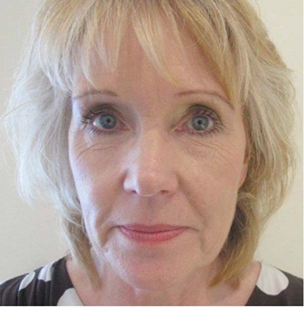A lady before skin tightening treatment