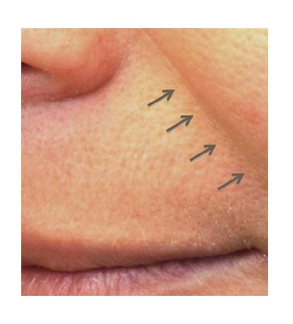 A close up of a nose-to-mouth line before Pelleve treatment
