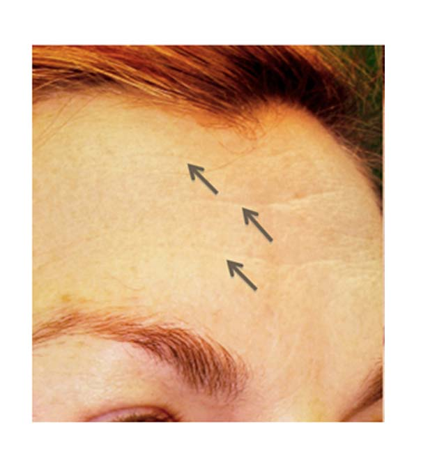 A close up of lines on the forehead