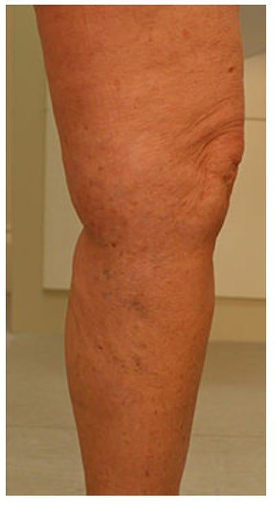 phlebectomy varicose veins treatment london after