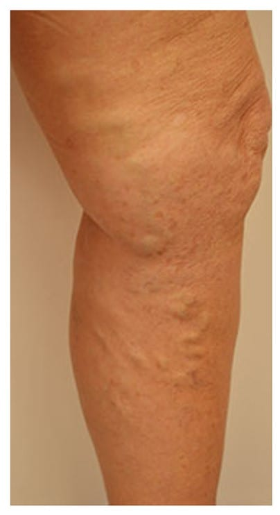 phlebectomy vericose vein treatment london