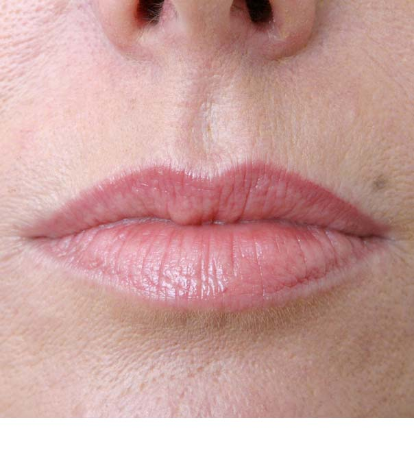 A close up of lips after having treatment with Restylane Skinboosters
