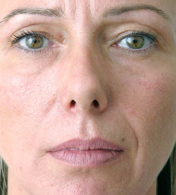 A lady before lower face and lip treatment
