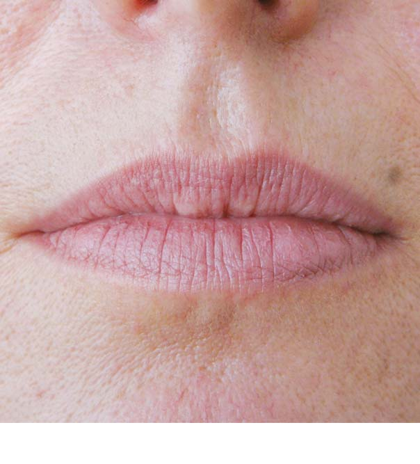 A close up of lips before Skinboosters treatment