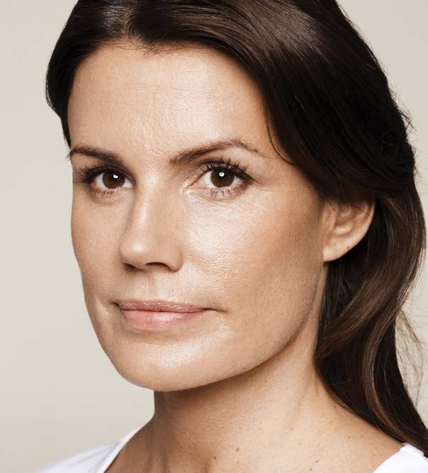 A lady after treatment with Restylane Skinboosters
