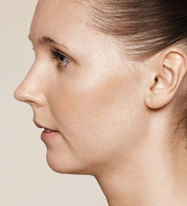 A lady with reduced acne scarring after Restylane treatment