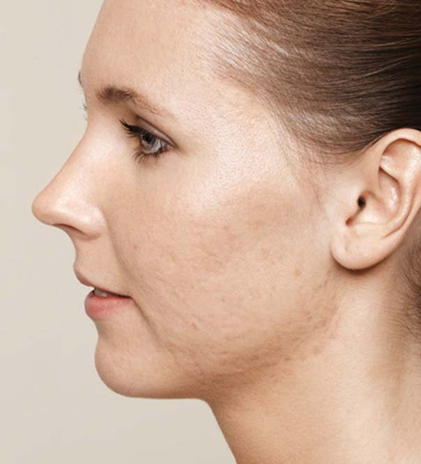 A lady with acne scarring