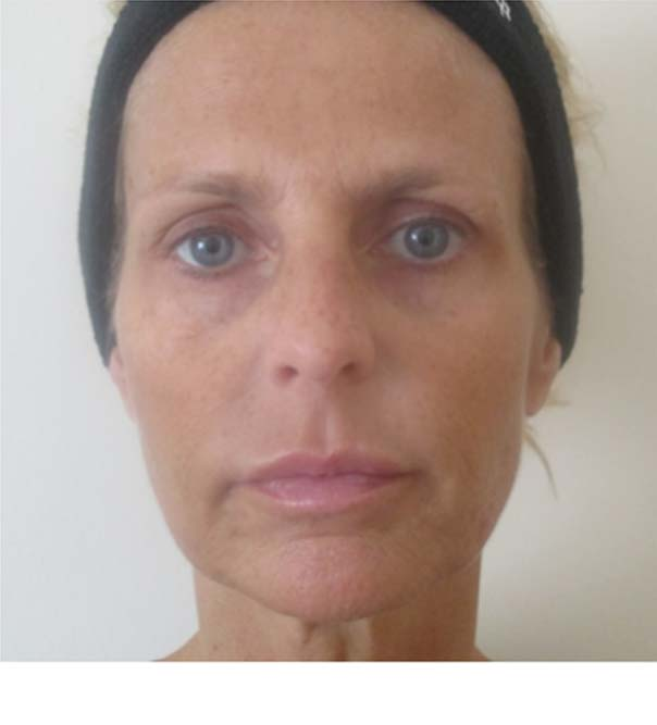 A lady after having treatment with Sculptra