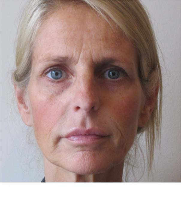 A lady before treatment with Sculptra