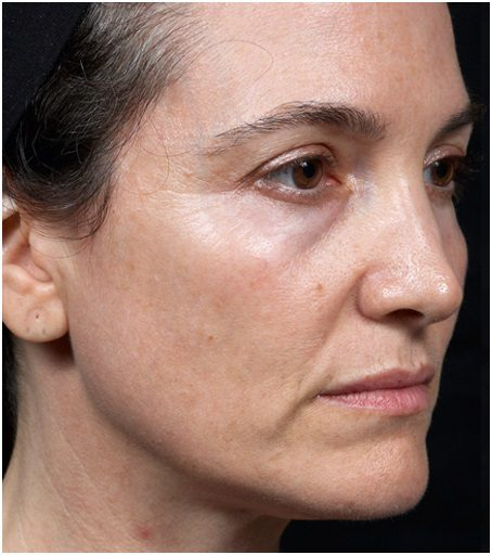 skin tightening face thermage flx after