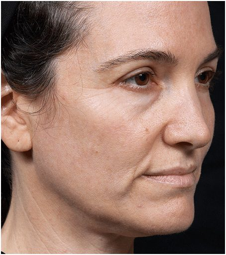 skin tightening face thermage flx before
