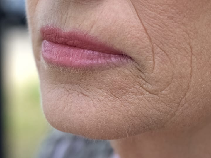 Smokers Lines Wrinkles
