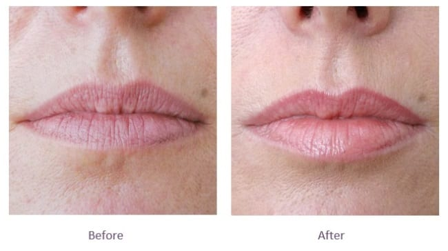 Subtle lip fillers before and after