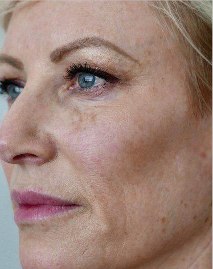 sun damaged skin ageing spots laser skin resurfacing after