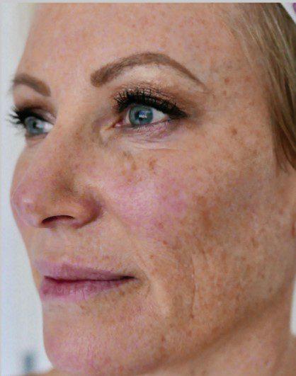 sun damaged skin ageing spots laser skin resurfacing before
