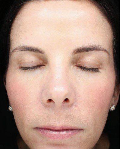 sun damaged skin laser resurfacing after