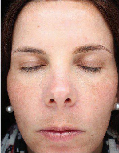sun damaged skin laser resurfacing before
