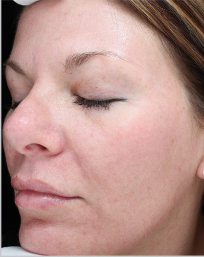 sun damaged skin laser skin resurfacing after