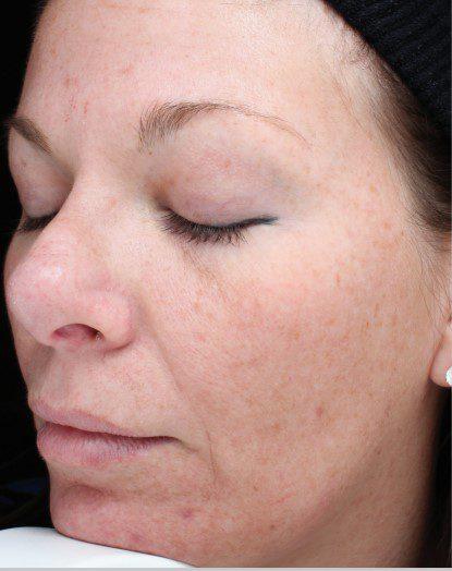sun damaged skin laser skin resurfacing before