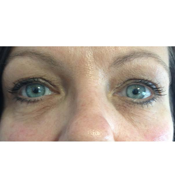 A close up of eyes following dermal fillers to the tear trough