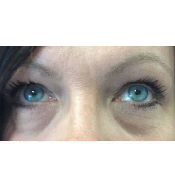 Eyes before tear trough treatment