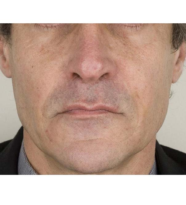 A man's face following treatment to the nasolabial folds with Teosyal