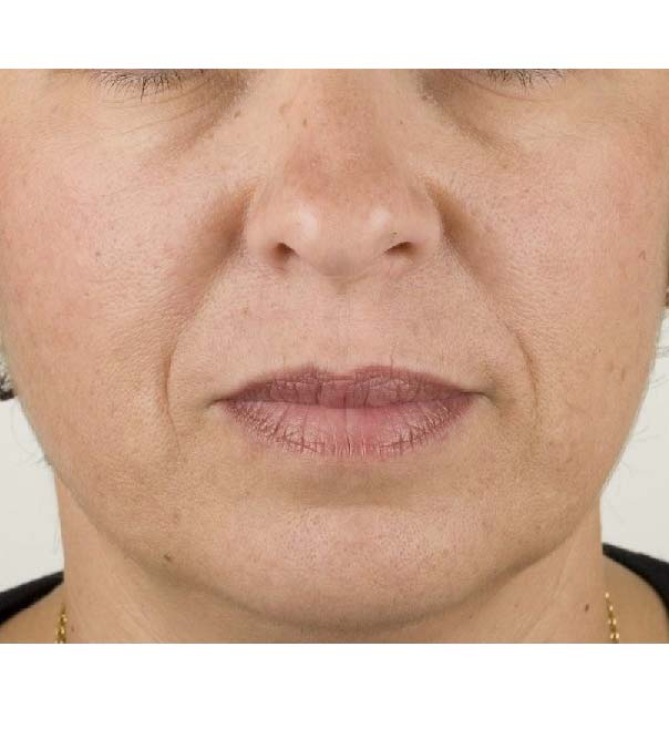 A close up of a lady's face before Teosyal treatment