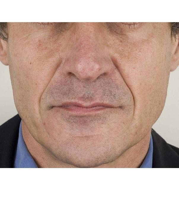 A man before having Teosyal treatment to the nasolabial folds