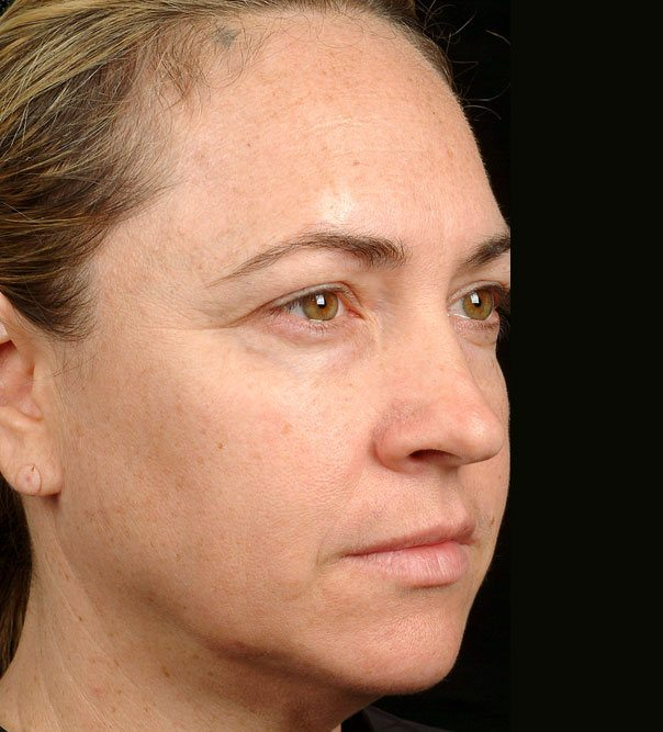 A lady following thermage treatment to the face