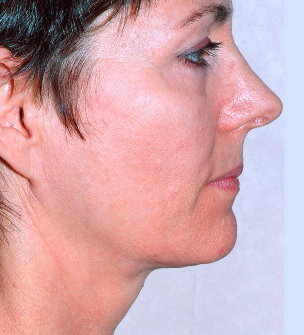 A profile view of a lady's face following thermage treatmen