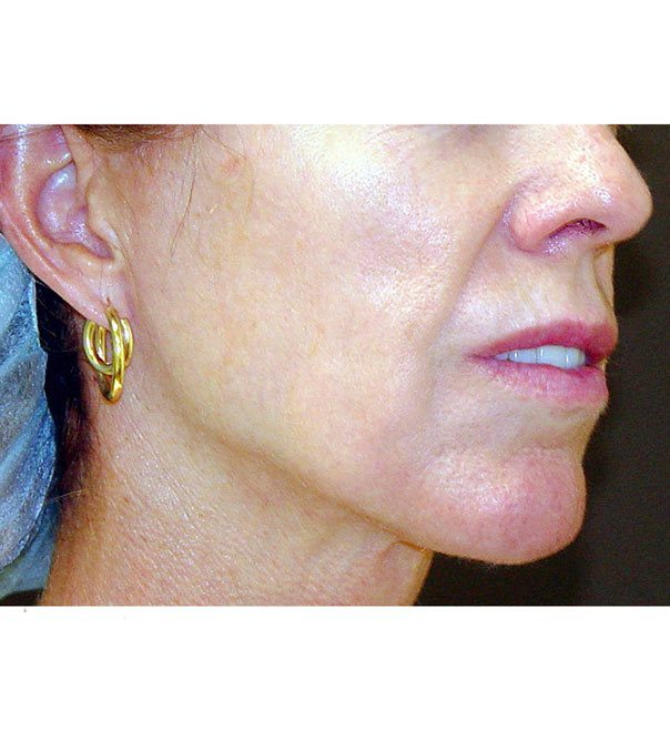 The lower face after thermage treatment