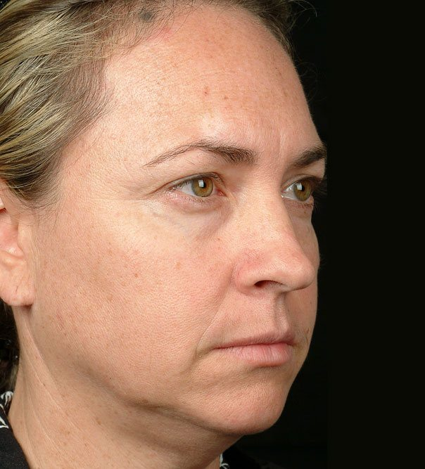 A lady's face before thermage treatment