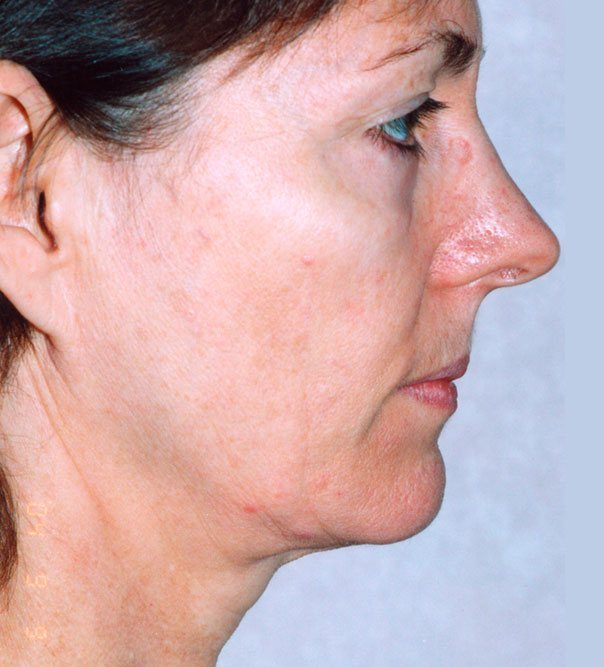 A profile view of a lady before thermage treatment