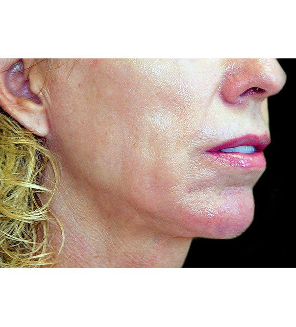 A lady's lower face before thermage