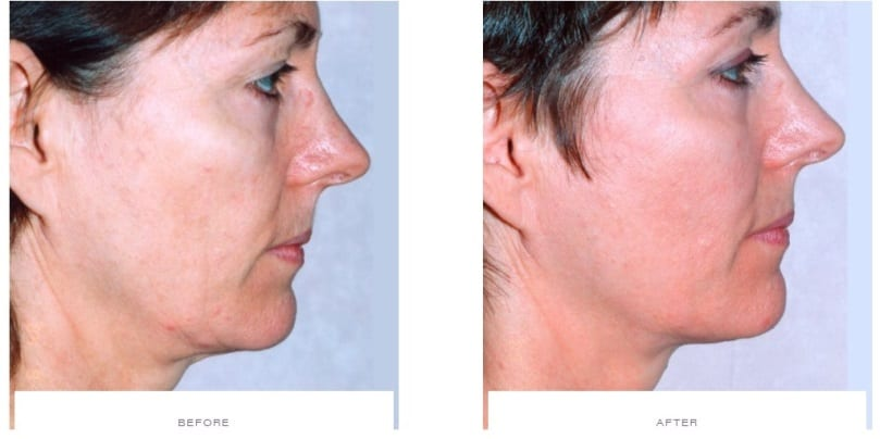 Thermage Cheeks Before and After